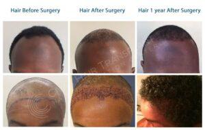 Afro Type Hair Transplant – Hair Transplant for African Type Hair