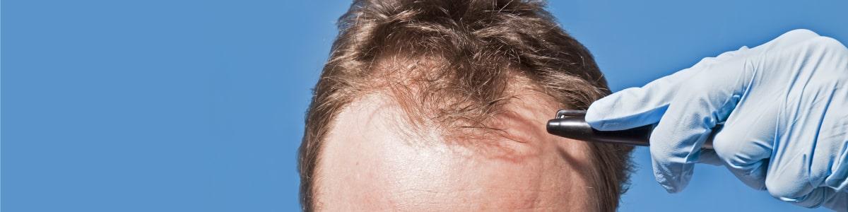 civas hair transplant