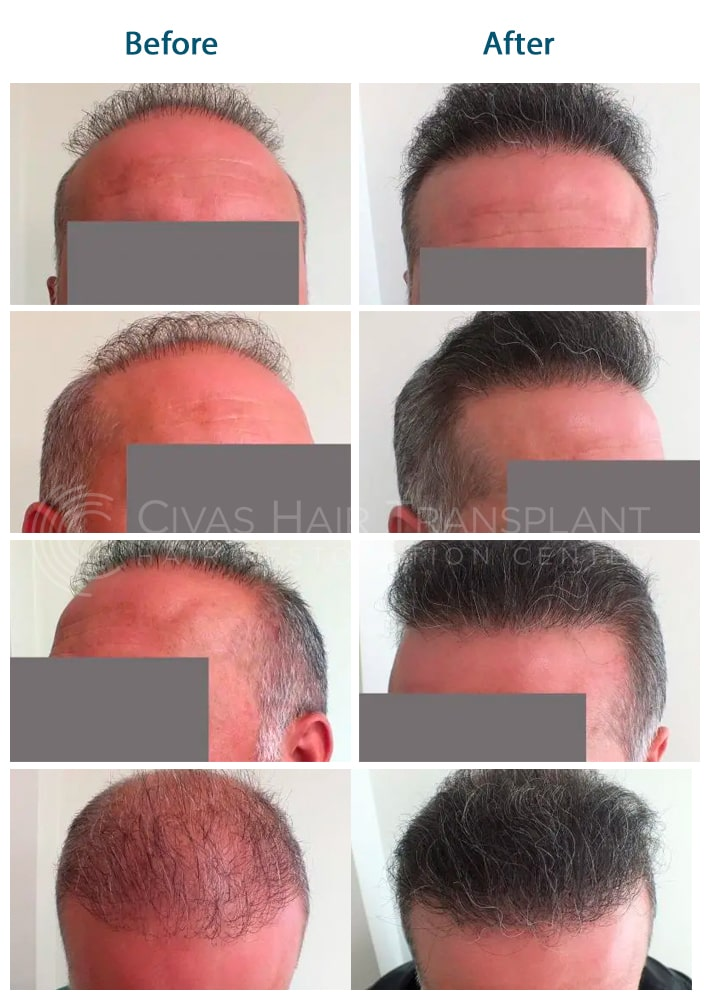 fixing old hair transplant
