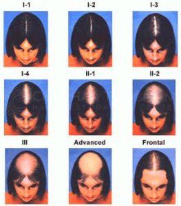 hair loss women