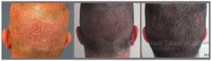 Robotic FUE Hair Transplantation