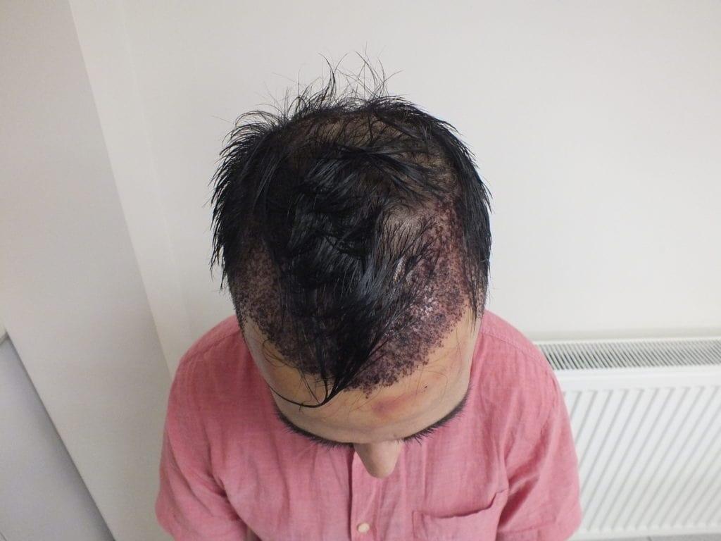 Unshaven FUE Hair Transplant