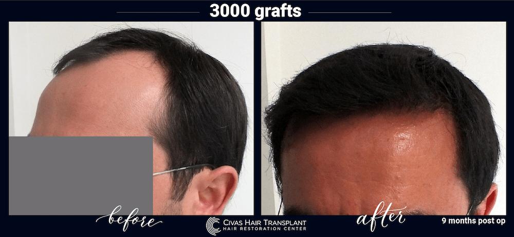 civas hair transplant in turkey