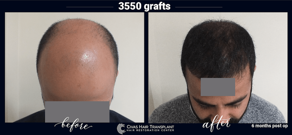 civas hair transplant in turkey